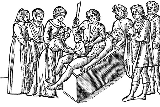 Woodcut illustration from 1506 of the birth of Julius Caesar by Caesarian section.
